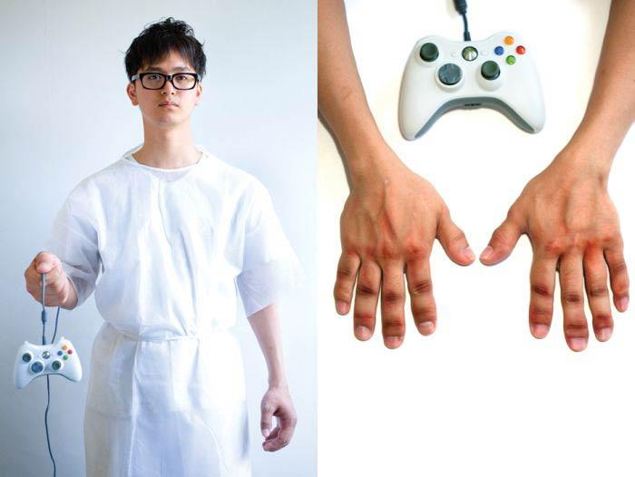 Деформация рук, артроз геймера