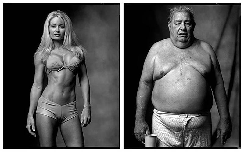 Фитнес-модель | Пациент, перенесший операцию на сердце, 2002-2005 гг